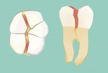 Por que formam trincas nos dentes?