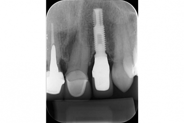 Por que o raio-x é tão usado no tratamento odontológico?
